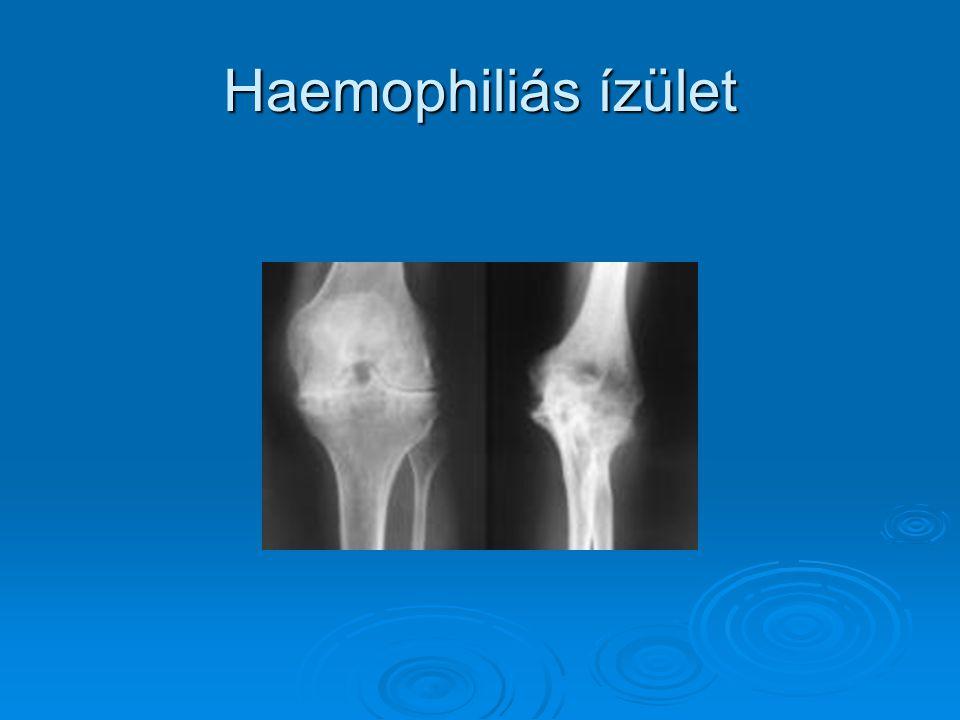 Haemophiliás ízület