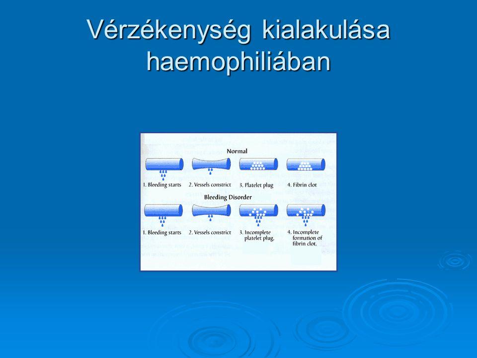 Vérzékenység kialakulása haemophiliában