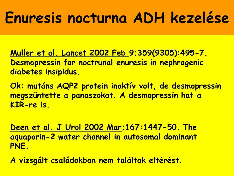 Enuresis nocturna ADH kezelése Muller et al. Lancet 2002 Feb 9;359(9305):495-7. Desmopressin for noctrunal enuresis in nephrogenic diabetes insipidus.