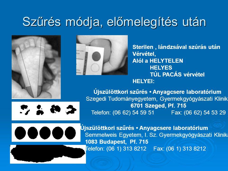 Szűrés módja, előmelegítés után Sterilen, lándzsával szúrás után Vérvétel, Alól a HELYTELEN HELYES TÚL PACÁS vérvétel HELYEI: Újszülöttkori szűrés Anyagcsere laboratórium Szegedi Tudományegyetem, Gyermekgyógyászati Klinika 6701 Szeged, Pf.
