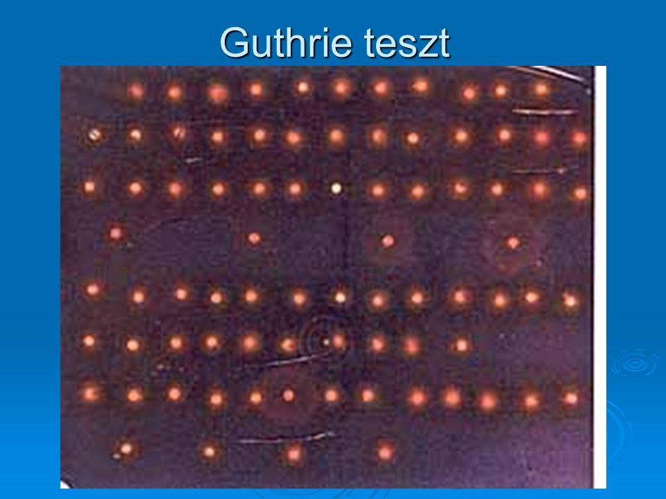 Guthrie teszt