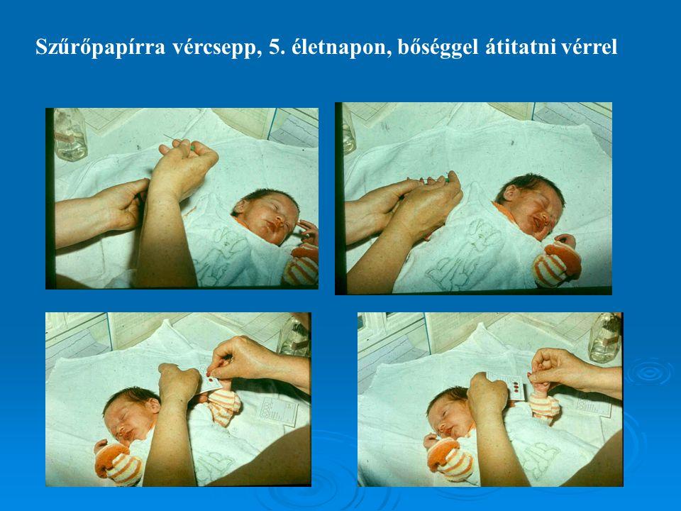 Szűrőpapírra vércsepp, 5. életnapon, bőséggel átitatni vérrel