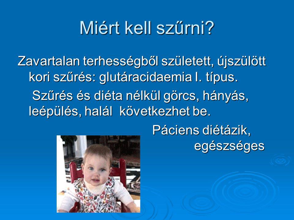 Miért kell szűrni? Zavartalan terhességből született, újszülött kori szűrés: glutáracidaemia I. típus. Szűrés és diéta nélkül görcs, hányás, leépülés,