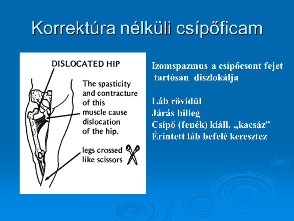 """Korrektúra nélküli csípőficam Izomspazmus a csípőcsont fejet tartósan diszlokálja Láb rövidül Járás billeg Csípő (fenék) kiáll, """"kacsáz"""" Érintett láb"""