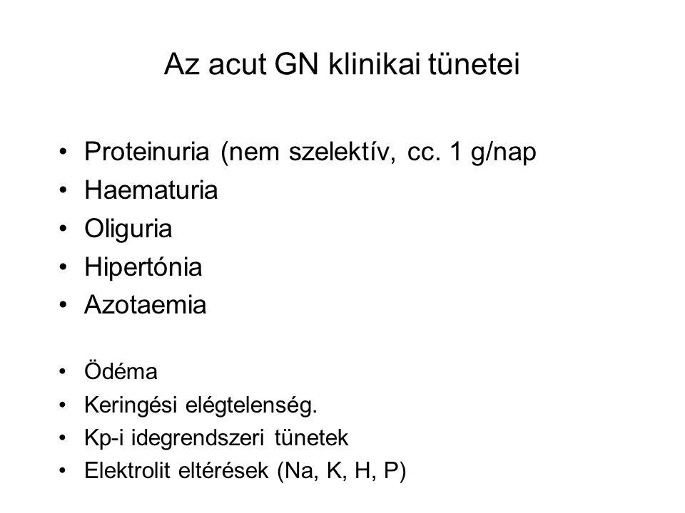 Az acut GN klinikai tünetei Proteinuria (nem szelektív, cc.