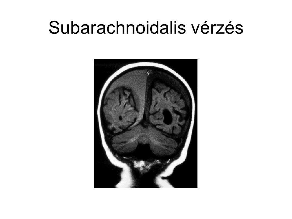Subarachnoidalis vérzés