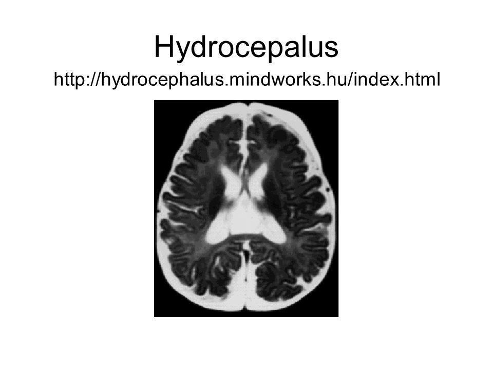 Hydrocepalus http://hydrocephalus.mindworks.hu/index.html
