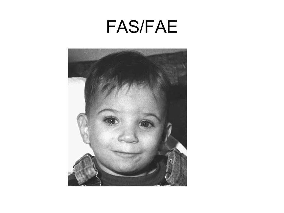 FAS/FAE
