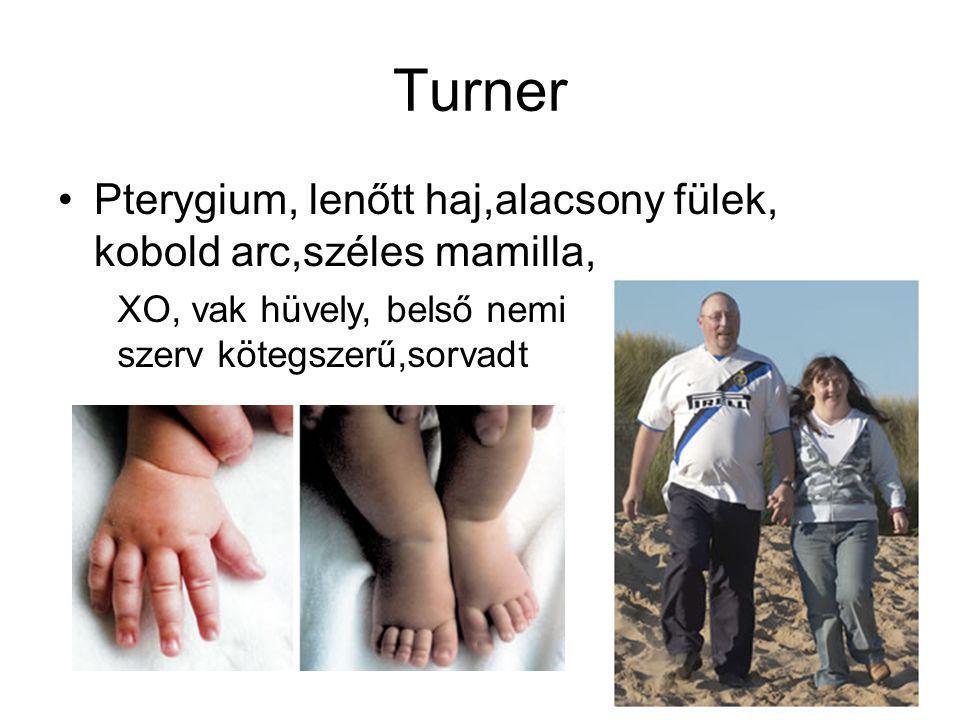 Turner Pterygium, lenőtt haj,alacsony fülek, kobold arc,széles mamilla, XO, vak hüvely, belső nemi szerv kötegszerű,sorvadt