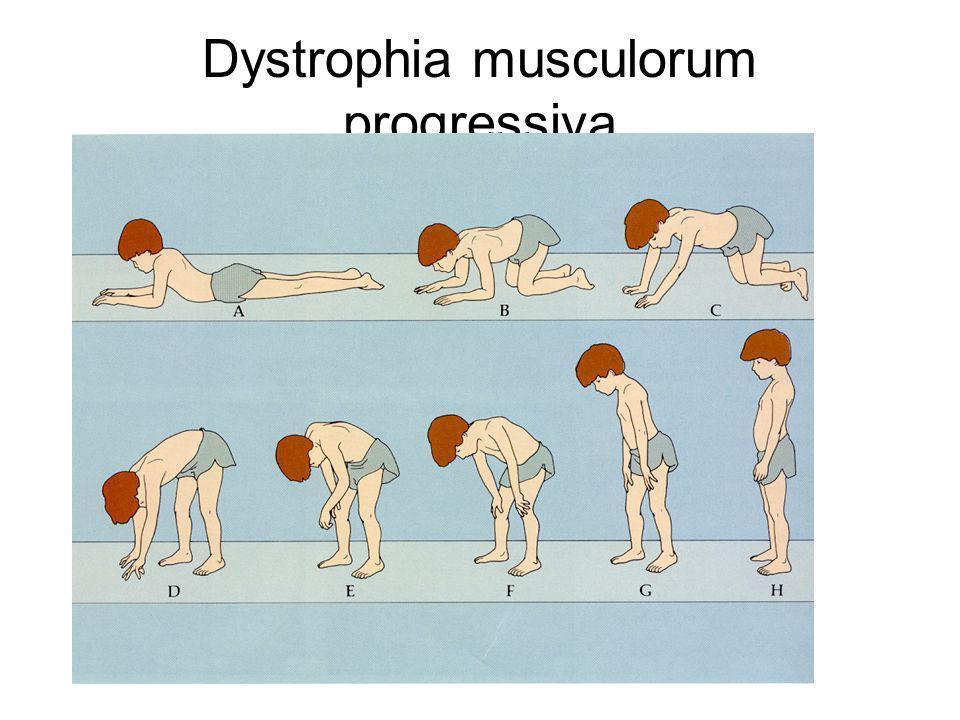 Dystrophia musculorum progressiva