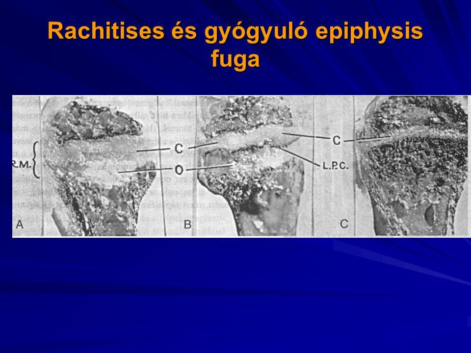 Rachitises és gyógyuló epiphysis fuga