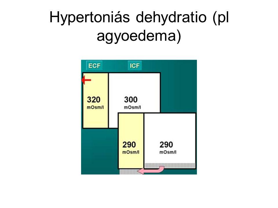 KÁLIUM háztartás SeK4,5 – 5,5mM/l normálisan, vese űrít Hypokalaemia oka K mentes táplálkozás, Na ++ fokozott bevitel, Na+ ←→K+ Sóhiányos dehydratio Heveny anyagcserezavar reparációja Mineralo corticoid hiány Glucocorticoid adás K űrítést 