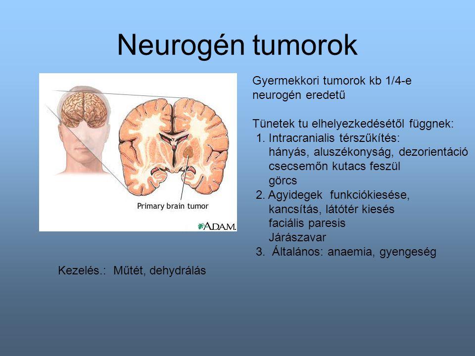 Neurogén tumorok Gyermekkori tumorok kb 1/4-e neurogén eredetű Tünetek tu elhelyezkedésétől függnek: 1.