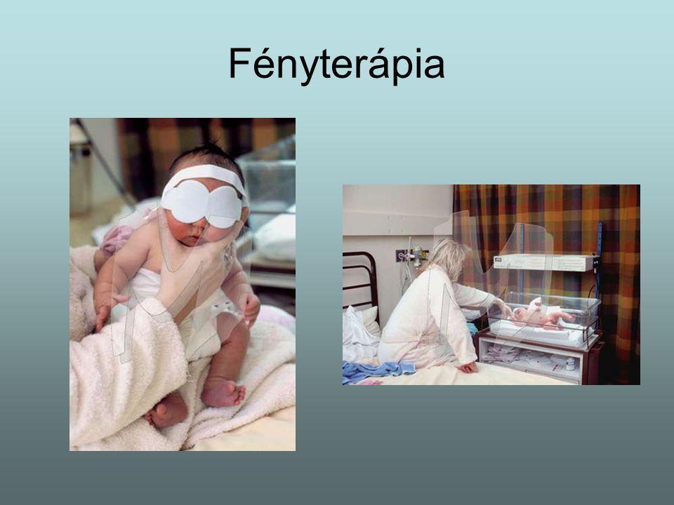 Fényterápia