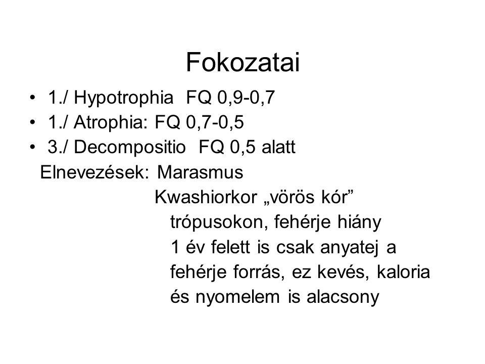 """Fokozatai 1./ Hypotrophia FQ 0,9-0,7 1./ Atrophia: FQ 0,7-0,5 3./ Decompositio FQ 0,5 alatt Elnevezések: Marasmus Kwashiorkor """"vörös kór trópusokon, fehérje hiány 1 év felett is csak anyatej a fehérje forrás, ez kevés, kaloria és nyomelem is alacsony"""
