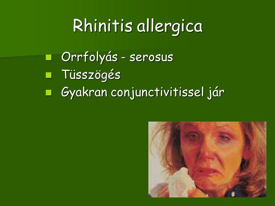 Rhinitis allergica Orrfolyás - serosus Orrfolyás - serosus Tüsszögés Tüsszögés Gyakran conjunctivitissel jár Gyakran conjunctivitissel jár