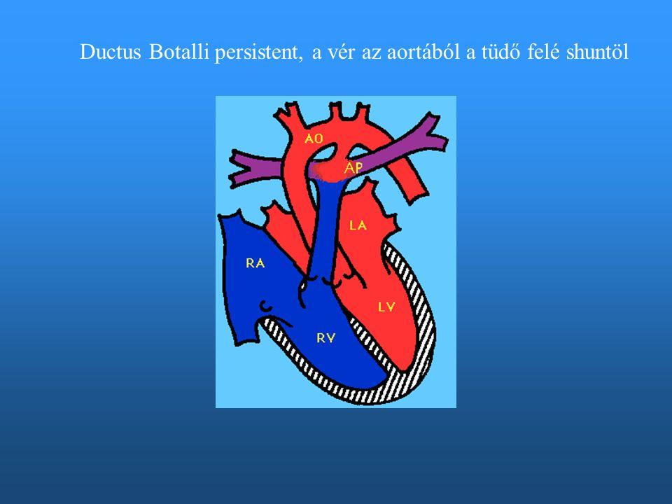 Ductus Botalli persistent, a vér az aortából a tüdő felé shuntöl