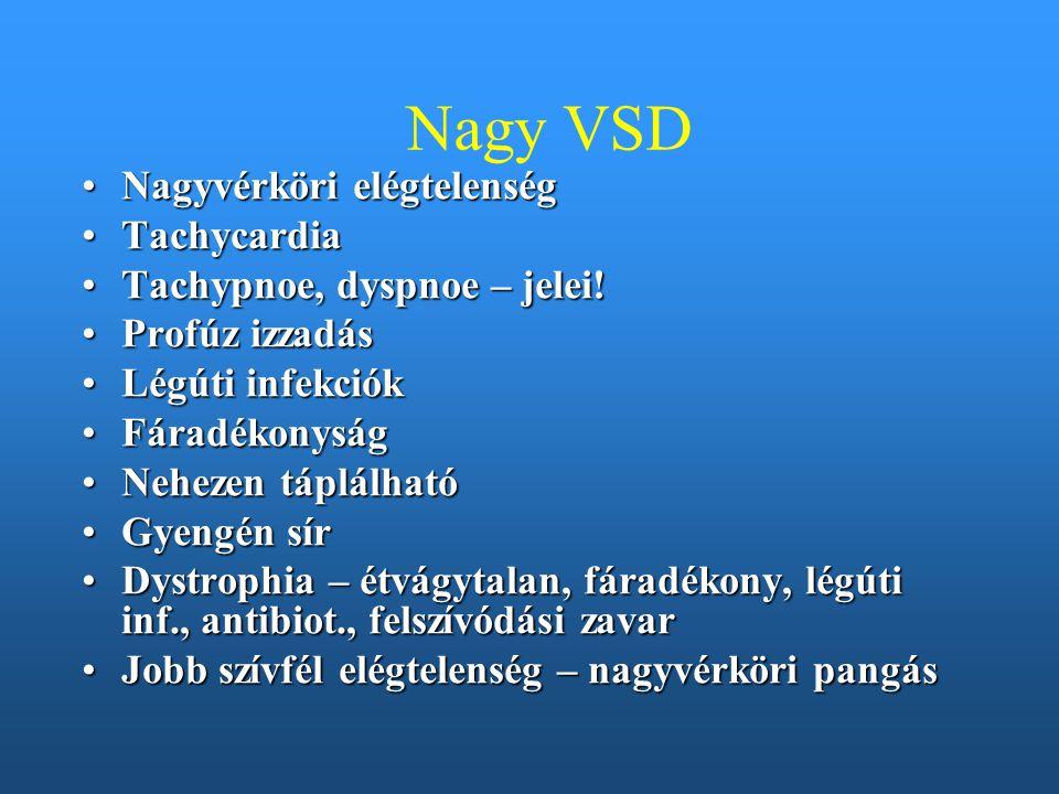 Nagy VSD Nagyvérköri elégtelenségNagyvérköri elégtelenség TachycardiaTachycardia Tachypnoe, dyspnoe – jelei!Tachypnoe, dyspnoe – jelei! Profúz izzadás