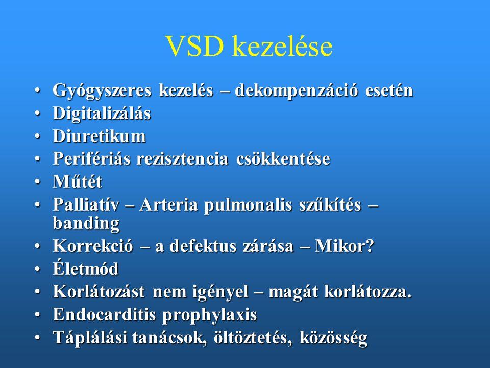 VSD kezelése Gyógyszeres kezelés – dekompenzáció eseténGyógyszeres kezelés – dekompenzáció esetén DigitalizálásDigitalizálás DiuretikumDiuretikum Peri