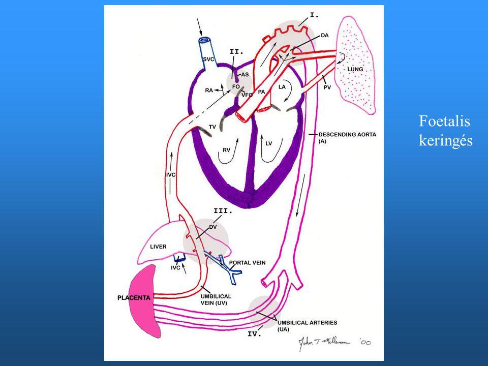 TGA tünetei O2 belélegeztetésére sem javuló cyanosis – hyperoxia tesztO2 belélegeztetésére sem javuló cyanosis – hyperoxia teszt Azonnali beavatkozást igényelAzonnali beavatkozást igényel Ha nagy VSD társul, cyanosis enyheHa nagy VSD társul, cyanosis enyhe