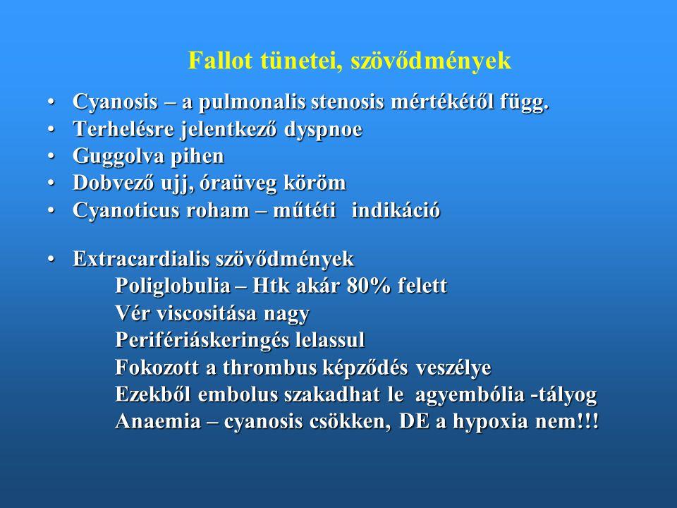 Fallot tünetei, szövődmények Cyanosis – a pulmonalis stenosis mértékétől függ.Cyanosis – a pulmonalis stenosis mértékétől függ. Terhelésre jelentkező