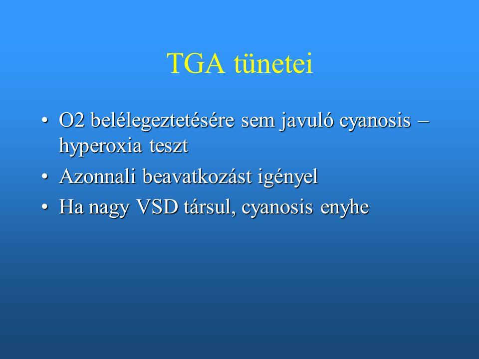 TGA tünetei O2 belélegeztetésére sem javuló cyanosis – hyperoxia tesztO2 belélegeztetésére sem javuló cyanosis – hyperoxia teszt Azonnali beavatkozást