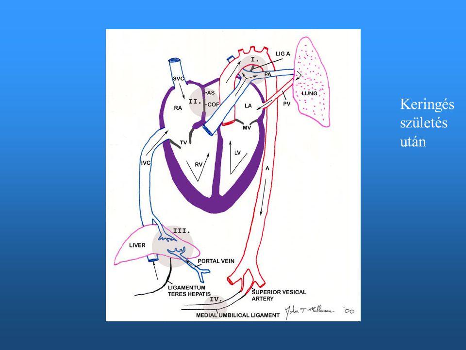 B-J shuntös csecsemő-gyermek ápolása Elárasztott tüdő, légzésszám emelkedik (monitorizálás) Lassan eszik, esetleg nem tud szopni, elfárad : többször kisebb adag, Körkörös etetés, türelem, hosszabb ideig is, lefejt anyatejjel Sűrűbb, kevés folyadékot tartalmazó, hyperozmotikus tápszer, Kevés folyadék (úgyis oedemás) Leizzad: réteges öltöztetés Megfázás elkerülése (huzat ne legyen) Orrkendő: pulmonális fertőzés, pangó tüdő miatt gyakori a pneumonia Sorvadás minimalizálása Kardialis decompenzatio elkerülése