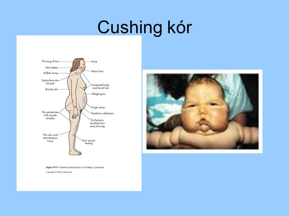 Cushing kór