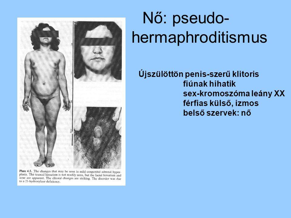 Nő: pseudo- hermaphroditismus Újszülöttön penis-szerű klitoris fiúnak hihatik sex-kromoszóma leány XX férfias külső, izmos belső szervek: nő