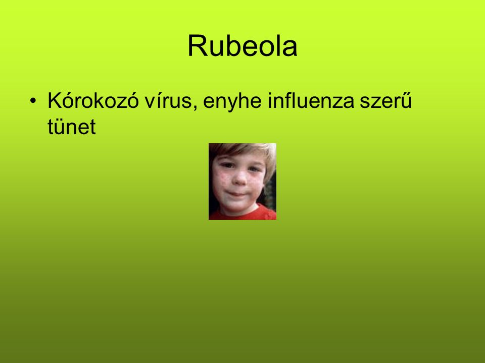 Rubeola Kórokozó vírus, enyhe influenza szerű tünet