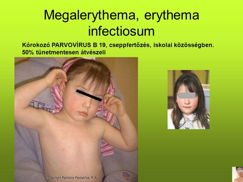 Megalerythema, erythema infectiosum Kórokozó PARVOVÍRUS B 19, cseppfertőzés, iskolai közösségben. 50% tünetmentesen átvészeli