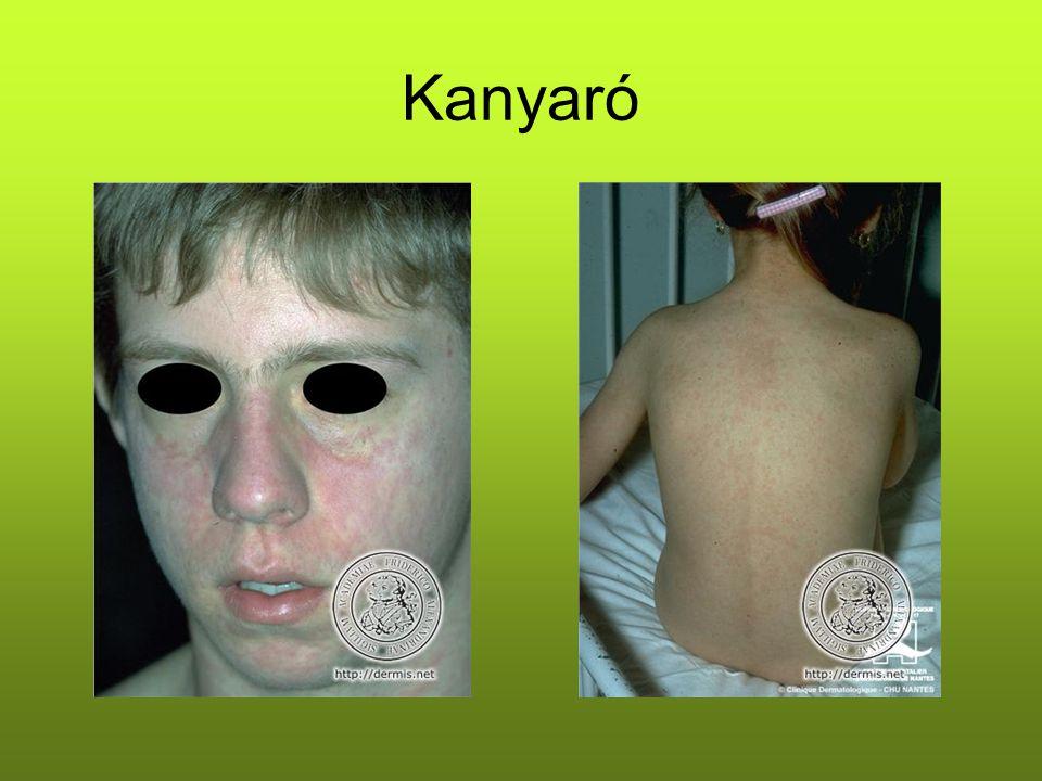 Kanyaró