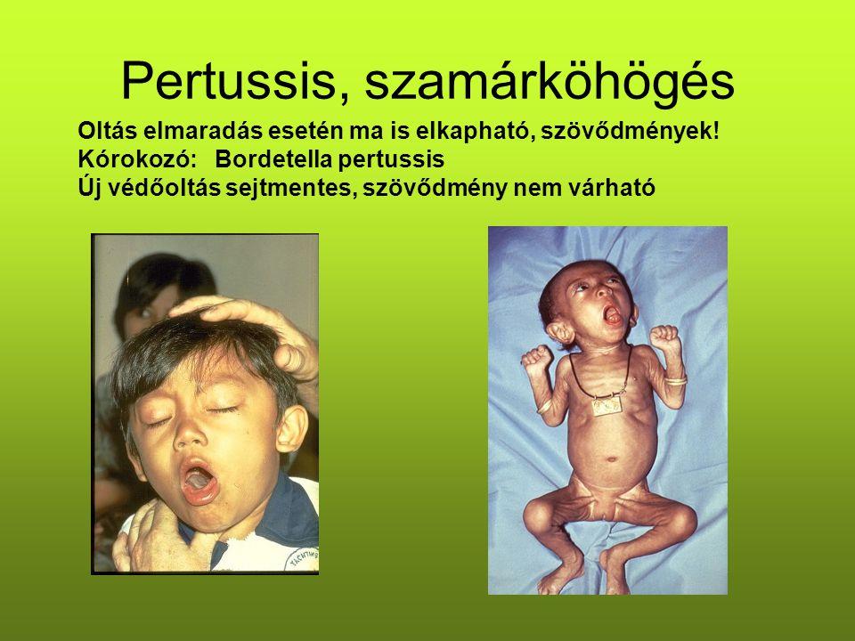 Pertussis, szamárköhögés Oltás elmaradás esetén ma is elkapható, szövődmények! Kórokozó: Bordetella pertussis Új védőoltás sejtmentes, szövődmény nem