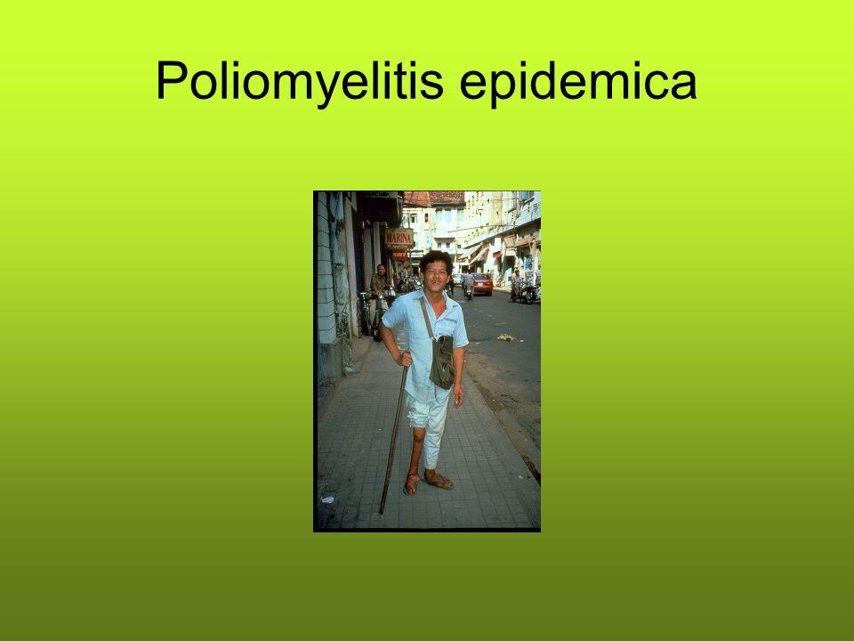 Poliomyelitis epidemica