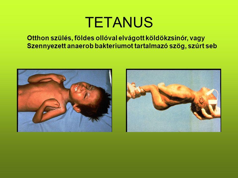 TETANUS Otthon szülés, földes ollóval elvágott köldökzsinór, vagy Szennyezett anaerob bakteriumot tartalmazó szög, szúrt seb