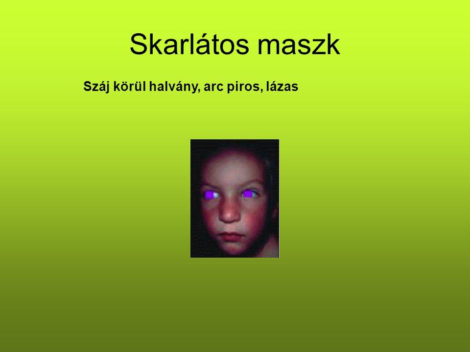 Skarlátos maszk Száj körül halvány, arc piros, lázas