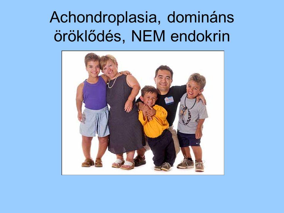Achondroplasia, domináns öröklődés, NEM endokrin
