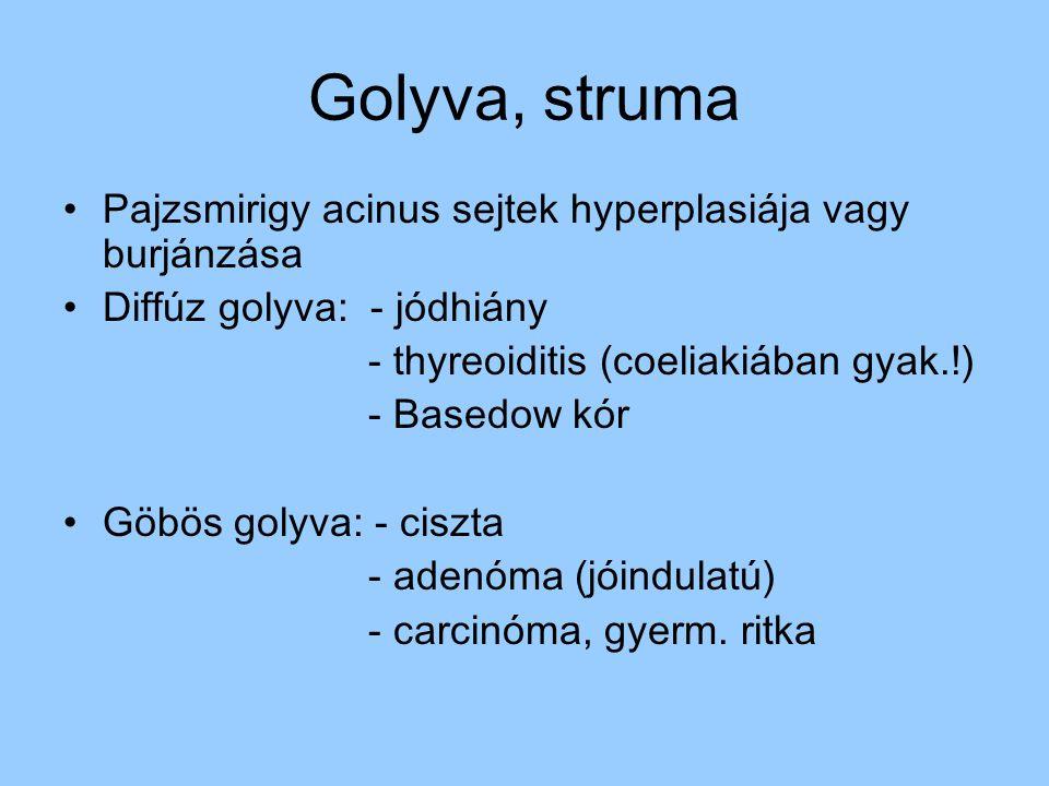 Golyva, struma Pajzsmirigy acinus sejtek hyperplasiája vagy burjánzása Diffúz golyva: - jódhiány - thyreoiditis (coeliakiában gyak.!) - Basedow kór Gö