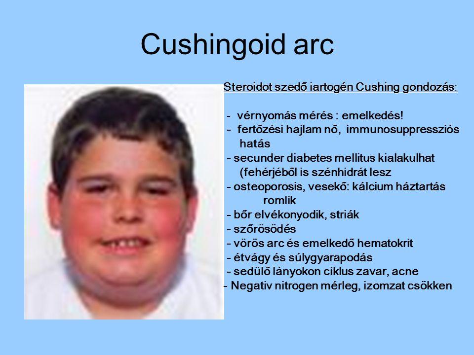 Cushingoid arc Steroidot szedő iartogén Cushing gondozás: - vérnyomás mérés : emelkedés! - fertőzési hajlam nő, immunosuppressziós hatás - secunder di