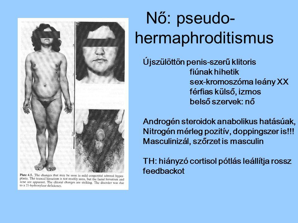 Nő: pseudo- hermaphroditismus Újszülöttön penis-szerű klitoris fiúnak hihetik sex-kromoszóma leány XX férfias külső, izmos belső szervek: nő Androgén