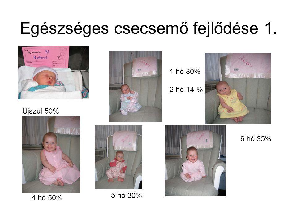 Egészséges csecsemő fejlődése 1. Újszül 50% 1 hó 30% 2 hó 14 % 4 hó 50% 5 hó 30% 6 hó 35%
