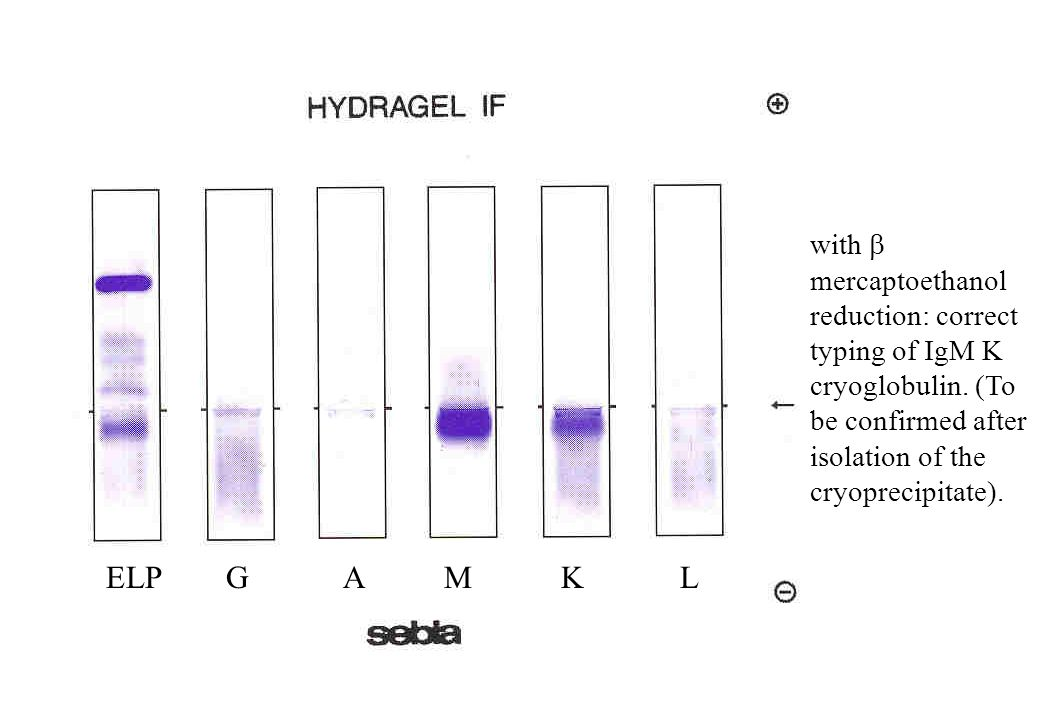 ELP G A M K L with  mercaptoethanol reduction: correct typing of IgM K cryoglobulin.