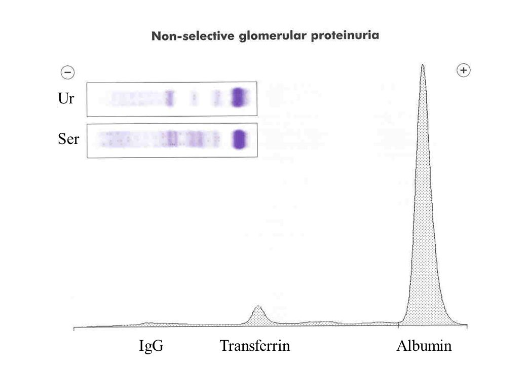 IgG Transferrin Albumin Ur Ser