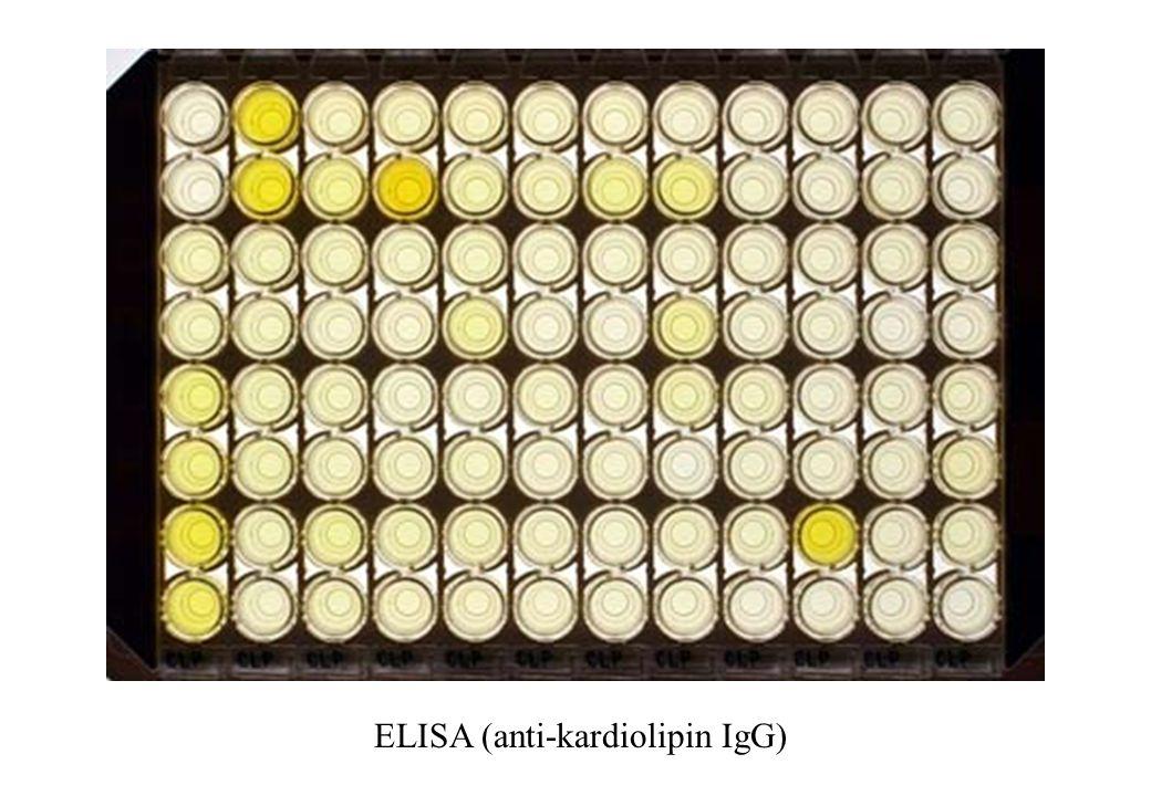 ELISA (anti-kardiolipin IgG)