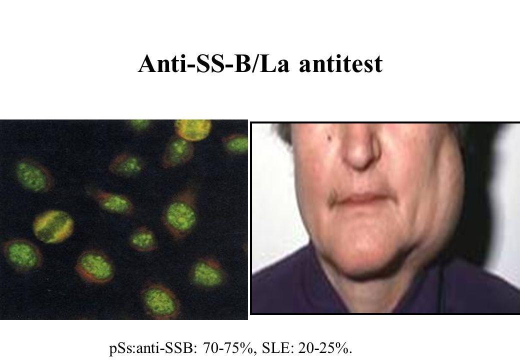 Anti-SS-B/La antitest pSs:anti-SSB: 70-75%, SLE: 20-25%.