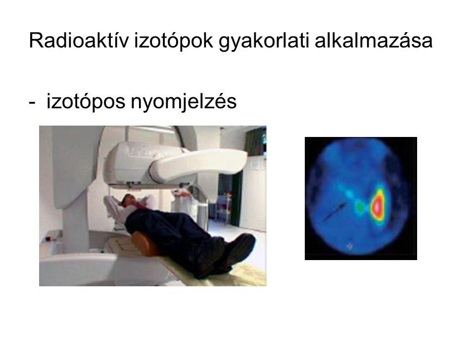 Radioaktív izotópok gyakorlati alkalmazása -izotópos nyomjelzés