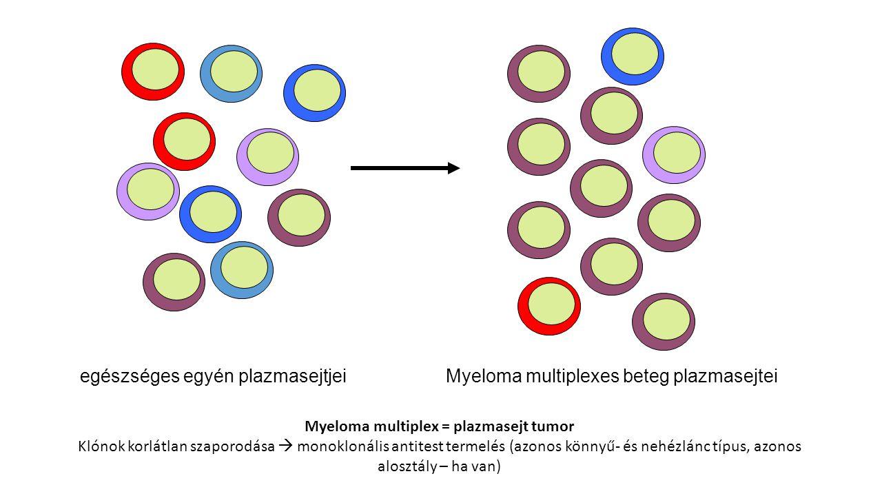 Myeloma multiplexes beteg plazmasejteiegészséges egyén plazmasejtjei Myeloma multiplex = plazmasejt tumor Klónok korlátlan szaporodása  monoklonális antitest termelés (azonos könnyű- és nehézlánc típus, azonos alosztály – ha van)