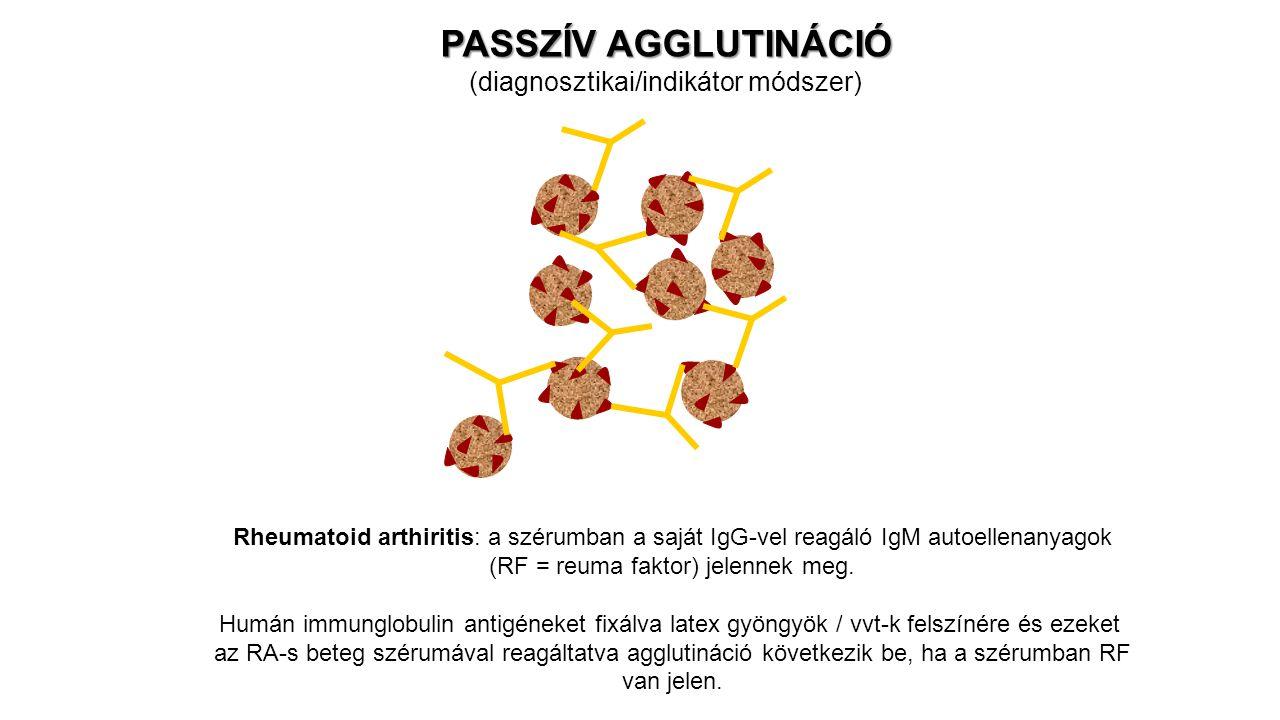 PASSZÍV AGGLUTINÁCIÓ (diagnosztikai/indikátor módszer) Rheumatoid arthiritis: a szérumban a saját IgG-vel reagáló IgM autoellenanyagok (RF = reuma fak