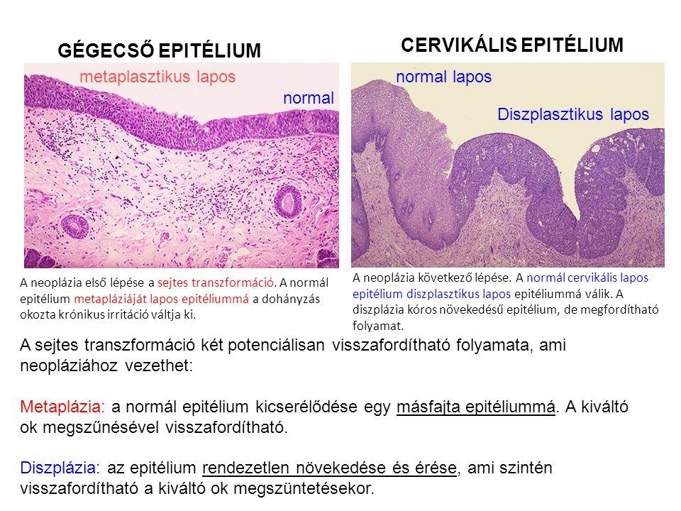 A neoplázia első lépése a sejtes transzformáció. A normál epitélium metapláziáját lapos epitéliummá a dohányzás okozta krónikus irritáció váltja ki. A