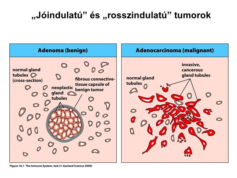 """""""Jóindulatú"""" és """"rosszindulatú"""" tumorok"""